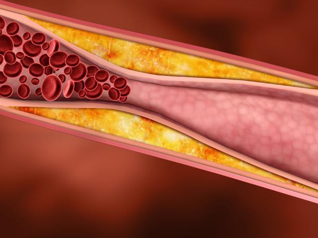 опасен повышенный холестерин в крови